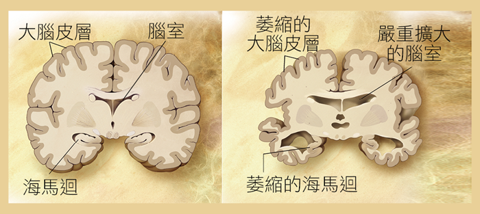 正常老人與老年癡呆症患者的大腦